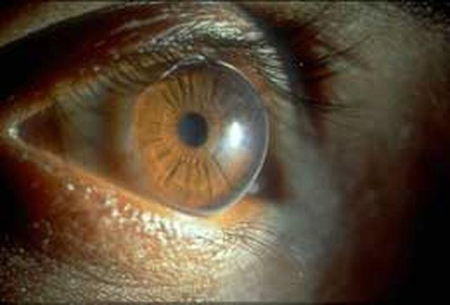 لازک عمدهترین روشها برای رفع عیوب انکساری چشم/ شیوع عیوب انکساری در کشور بالاست