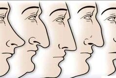 شخصیت شناسی به کمک فرم چانه صورت