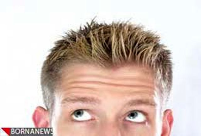 کاشت موهای عاریهای که میلیونها تومان میارزند