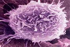 پذیره نویسی سلولهای بنیادین خونساز از ابتدای دی ماه