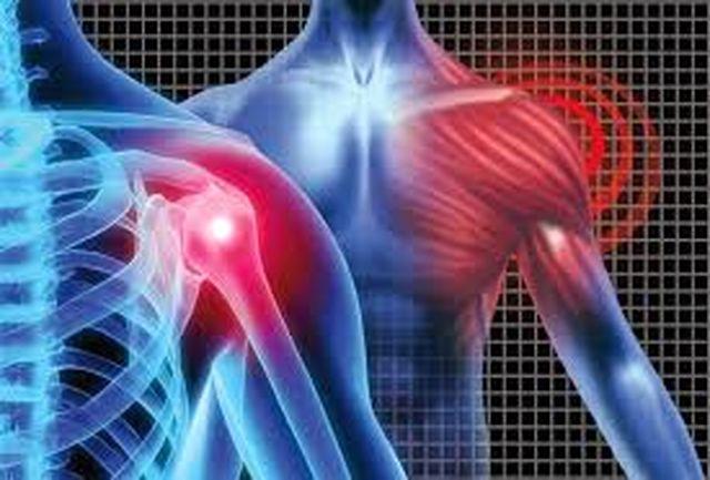 شکستگی شانه دومین حادثه شایع ارتوپدی است