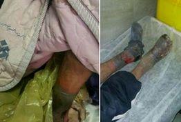 قطع هر دو پای بیمار کارتنخواب در همدان به دلیل سوء تدبیر برخی از مسوولان