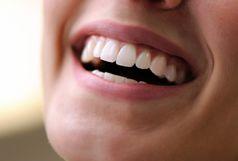 روشی ساده برای جرم گیری دندان در منزل